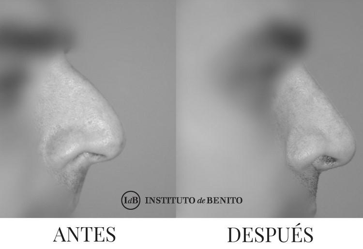rinoplastia barcelona antes y despues