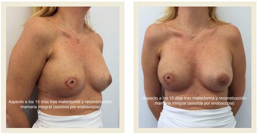 aspecto del pecho tras masectomia