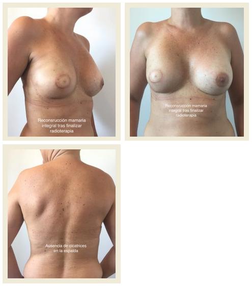 Reconstrucción de mamas sin cicatrices en la espalda