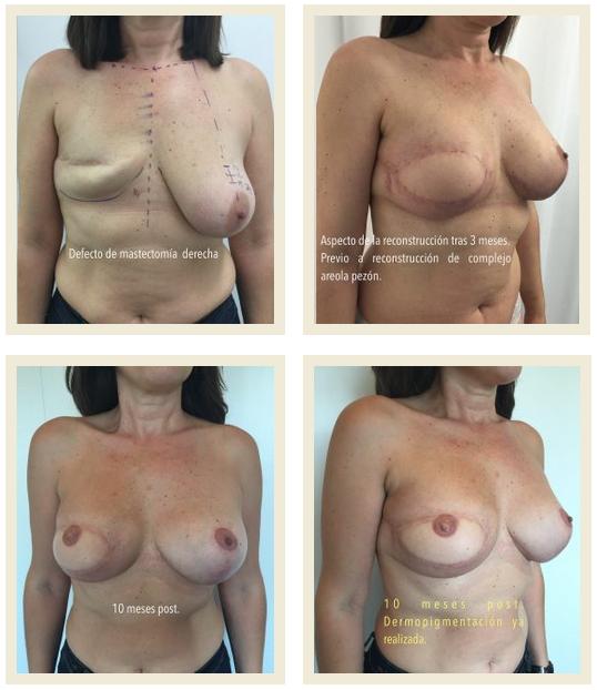 Reconstruir el pecho tras una mastectomia