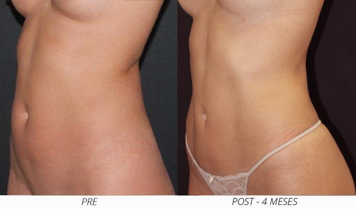 Resultado liposuccion vaser en mujer