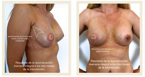 resultado de una recontruccion de mama