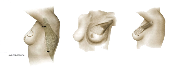cancer de mama joaquim muño