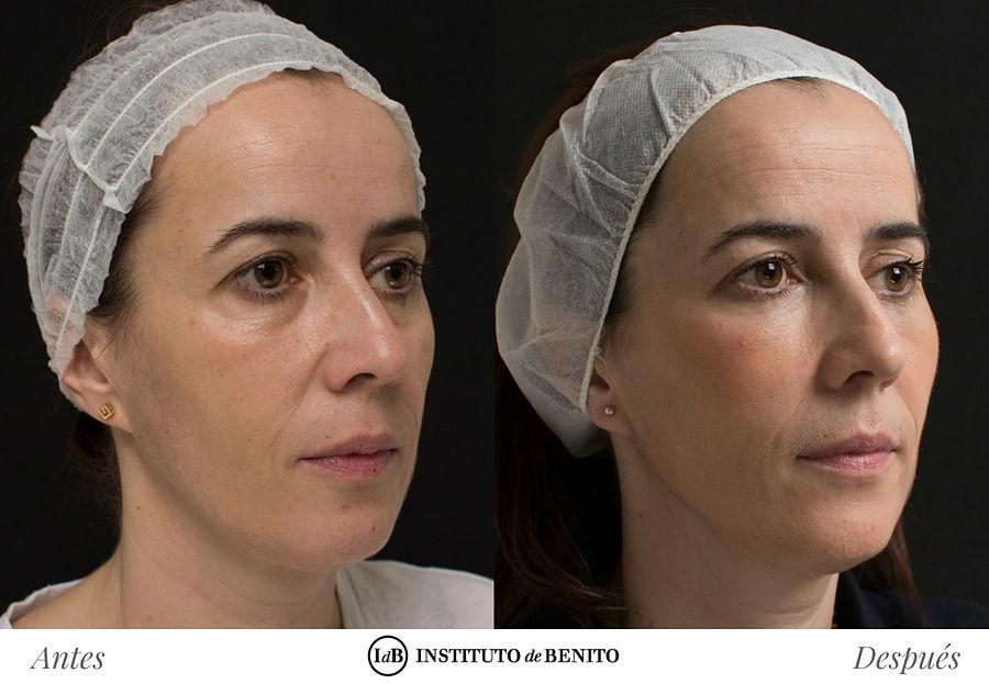rejuvenecimiento facial barcelona instituto de benito