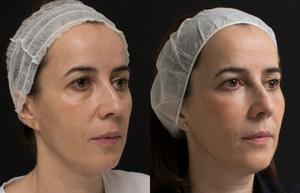 rejuvenecimiento facial instituto de benito barcelona